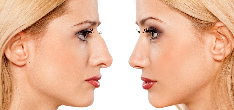 Plastyka uszu inosa – jak wyglądają zabiegi medycyny estetycznej?
