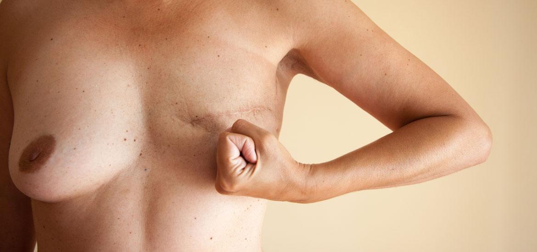 Mastektomia tonie koniec- rekonstrukcja piersi