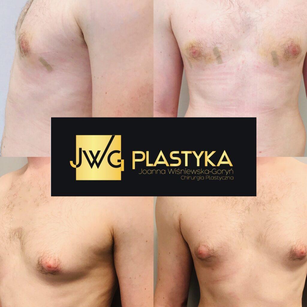 Liposukcja ginekomastii
