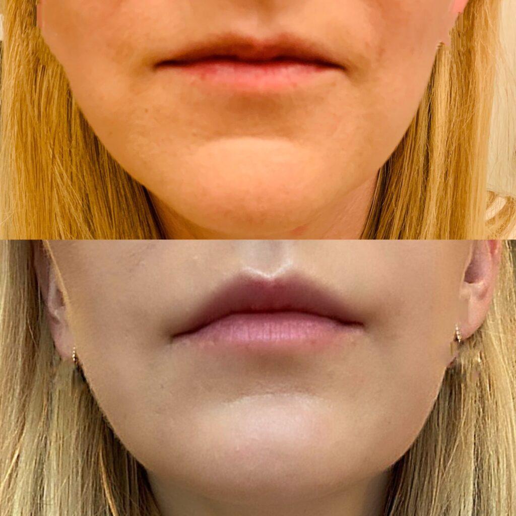 Korekcja ust kwasem hialuronowym