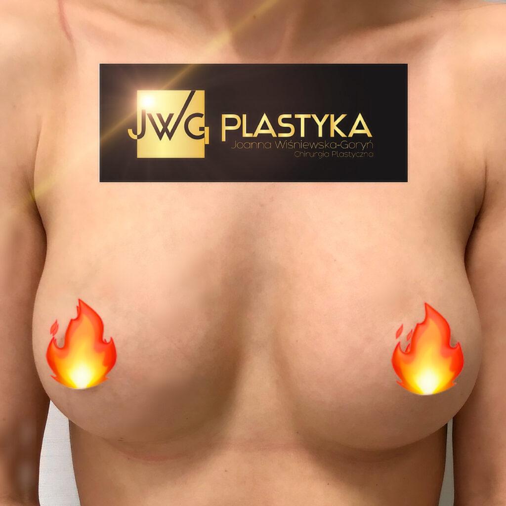 Implanty piersi 340cc