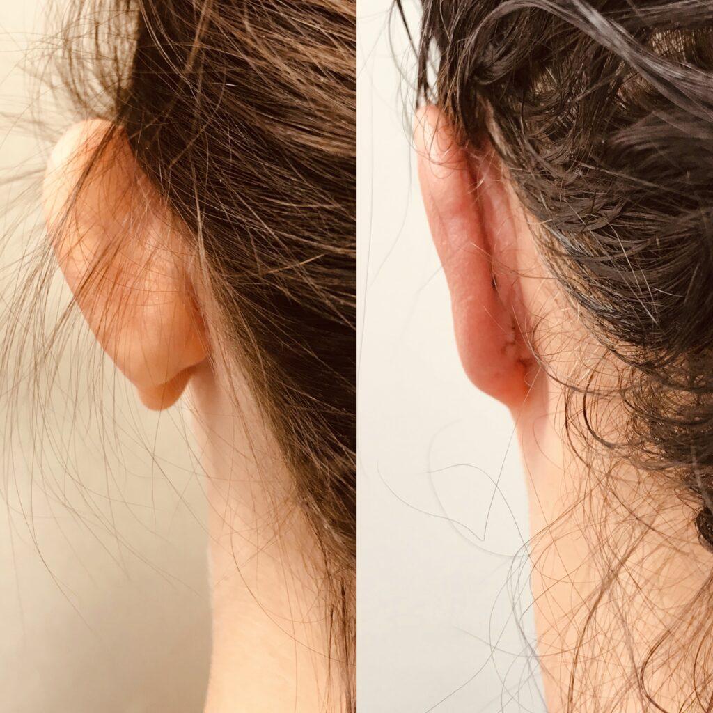 Korekcja małżowin usznych